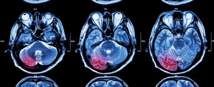 Brain scans noting where a brain tumor lies